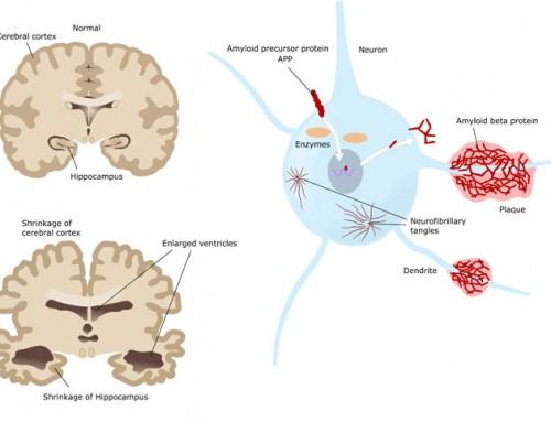 What brain changes occur in Alzheimer's patients?