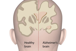 About the Alzheimer's Disease APOE DNA Test