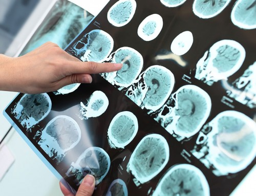 Metabolic basis for changes leading to Alzheimer's disease identified